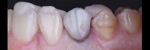 Photo dents pour implant