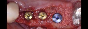 Photo implants avec bords noirs