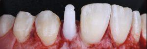 Photo implant